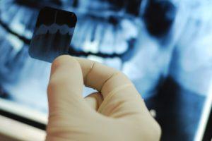 dental-reserch