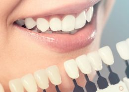 Cosmetic-Dentistry-Treatment