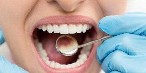 act-before-dental-cavity
