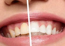 blossom-your-teeth