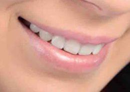 full-mouth-restoration