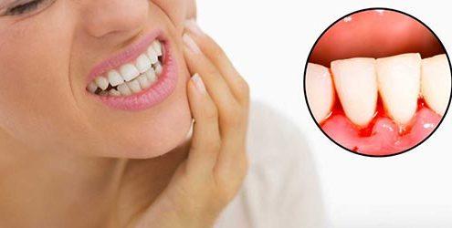 gum-bleeding