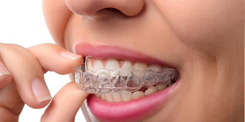 orthodontic-treatment