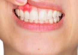 treat-gum-disease