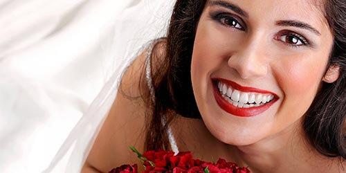 wedding-dentrisy