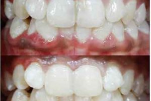 composite material for discoloration of teeth
